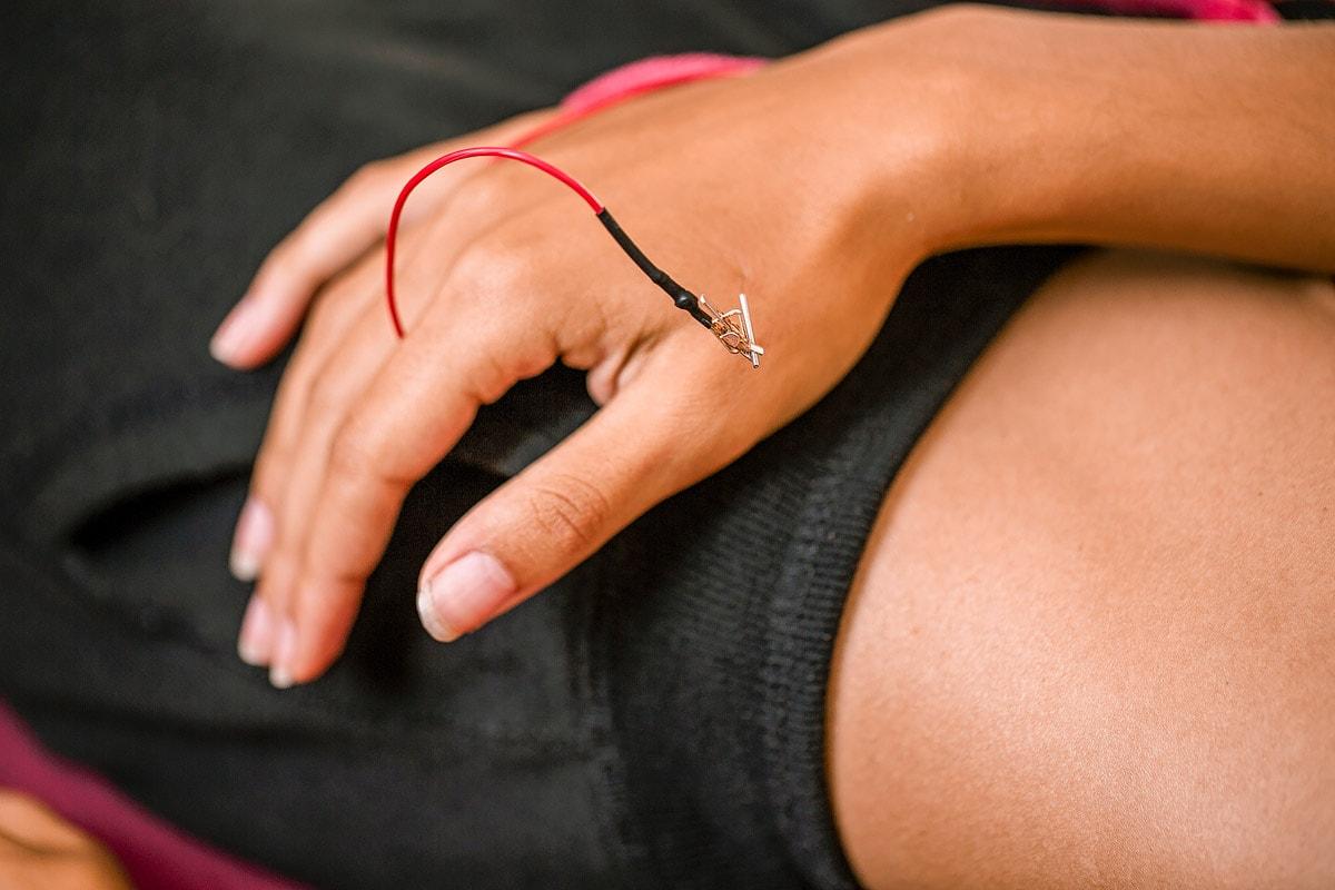 Elektro-Stimulations-Akupunktur, esa, akupunktur, 1