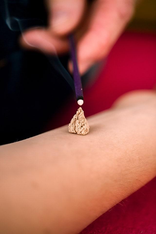 Moxibustion, akupunktur, Akupunktur Freiberg, akupunktur dresden, Akupunktur chemnitz, 2