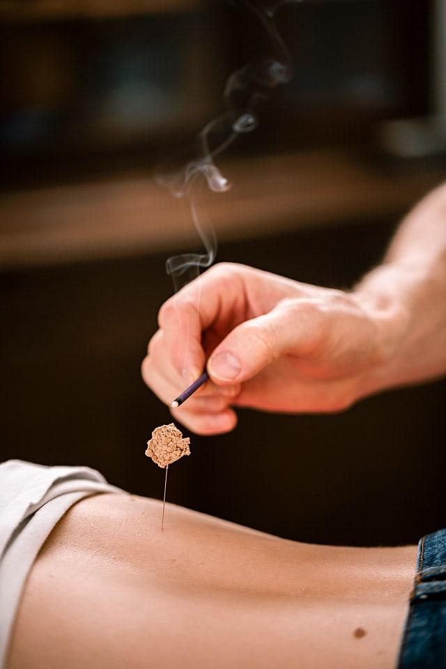 Moxibustion, akupunktur, Akupunktur Freiberg, akupunktur dresden, Akupunktur chemnitz, 5