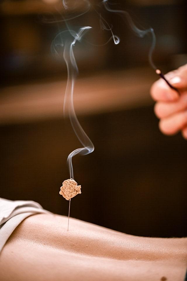 Moxibustion, akupunktur, Akupunktur Freiberg, akupunktur dresden, Akupunktur chemnitz, 6