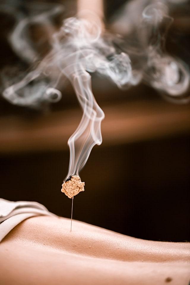 Moxibustion, akupunktur, Akupunktur Freiberg, akupunktur dresden, Akupunktur chemnitz, 7