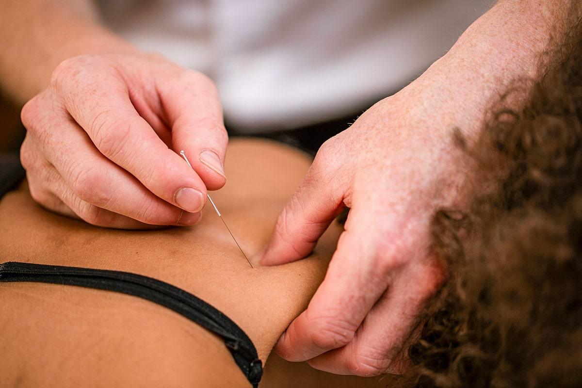 dry needling, akupunktur, 3