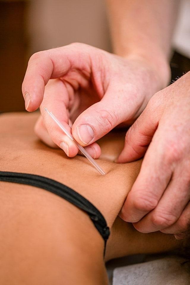 dry needling, akupunktur, 4